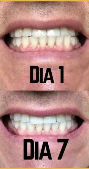 Ap24 Crema Dental Blanqueadora