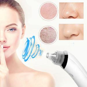 Extractor Limpiador Facial Puntos Negros Acne Espinillas Usb
