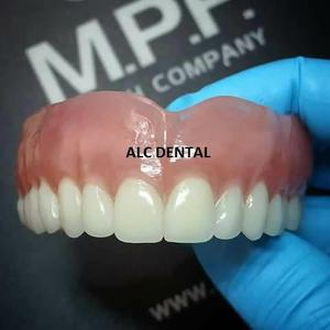 Prótesis Dentales Garantizadas en 12 Horas
